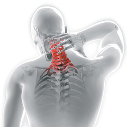 Neck Pain Treatment Chiropractic neck pain treatment